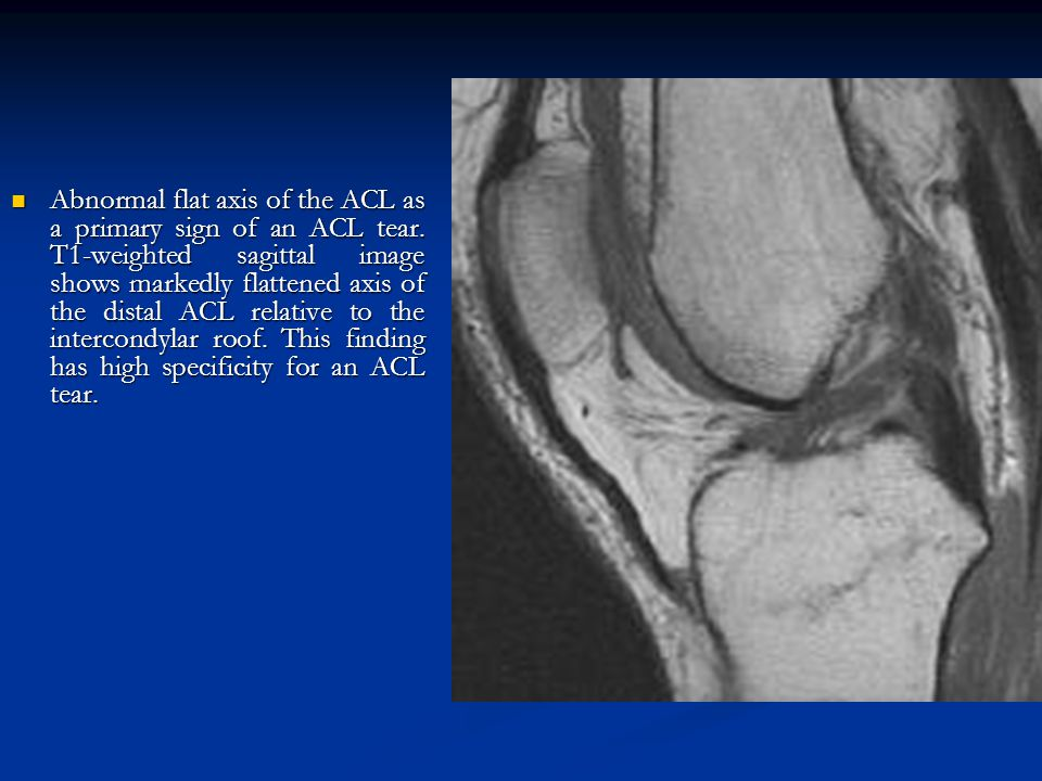 Abnormal flat axis of the ACL as a primary sign of an ACL tear