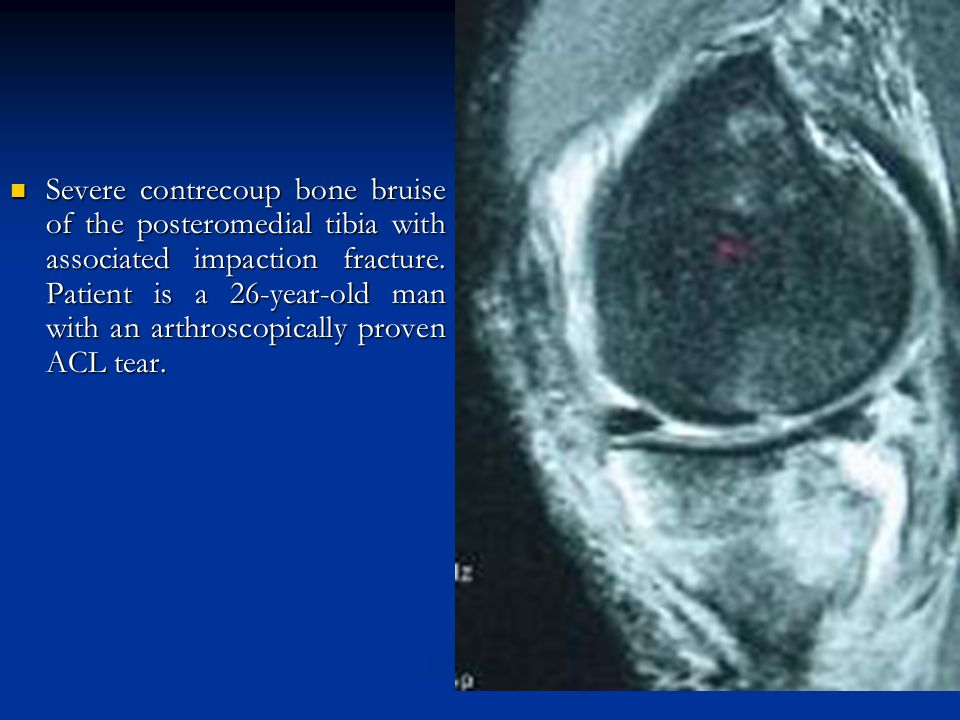 Severe contrecoup bone bruise of the posteromedial tibia with associated impaction fracture.