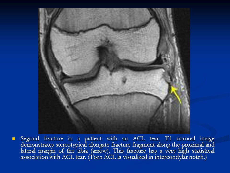 Segond fracture in a patient with an ACL tear