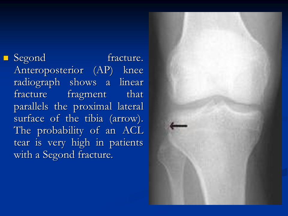 Segond fracture.
