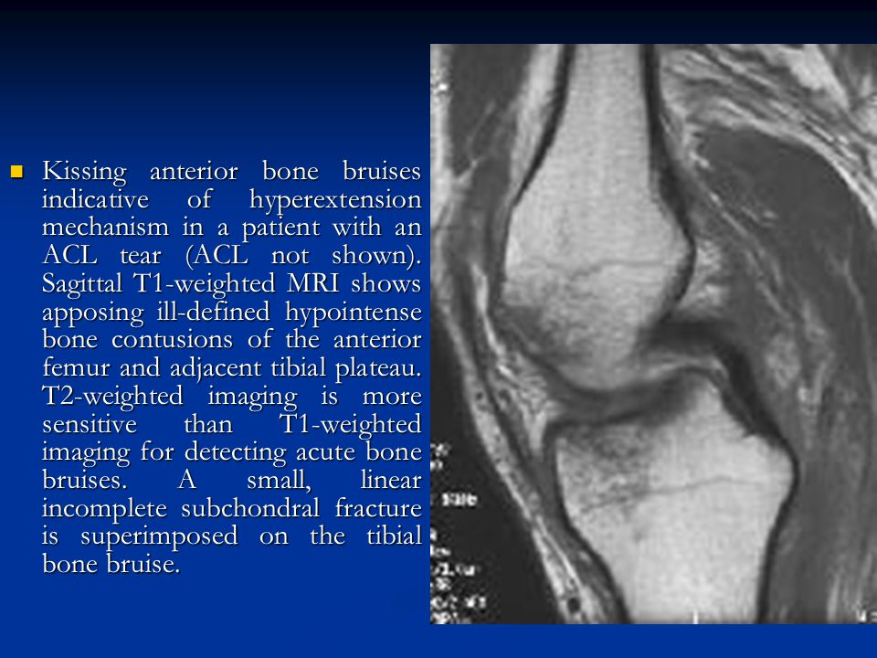Kissing anterior bone bruises indicative of hyperextension mechanism in a patient with an ACL tear (ACL not shown).