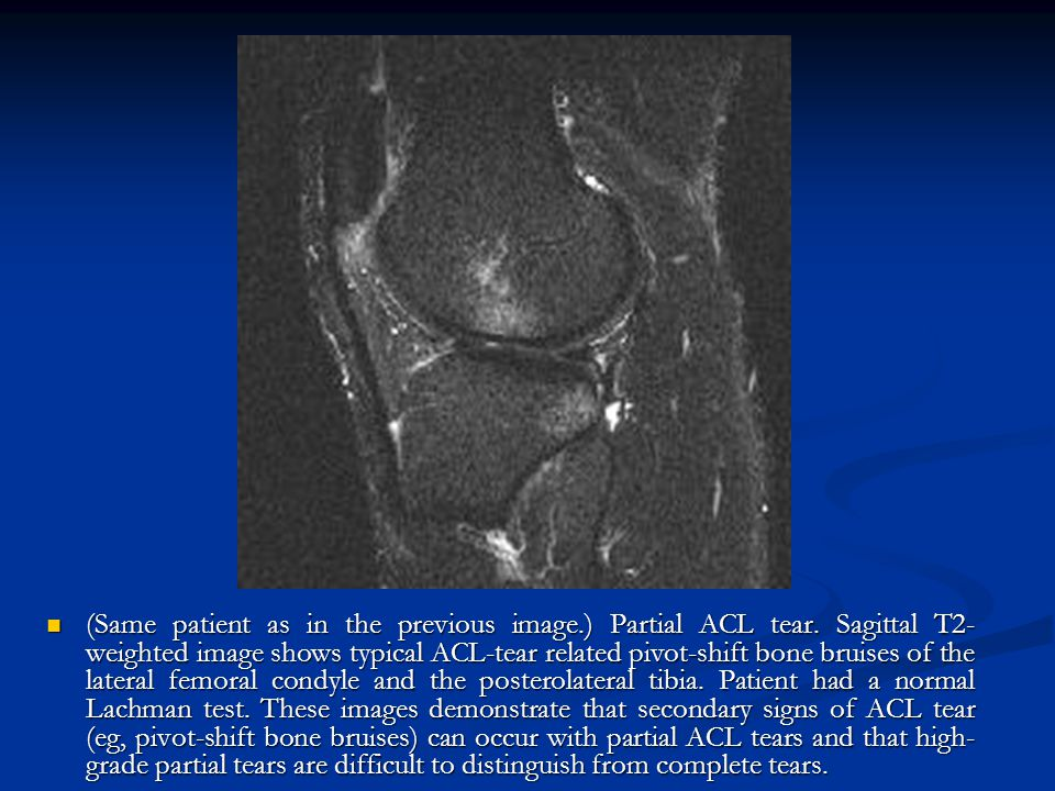 (Same patient as in the previous image. ) Partial ACL tear