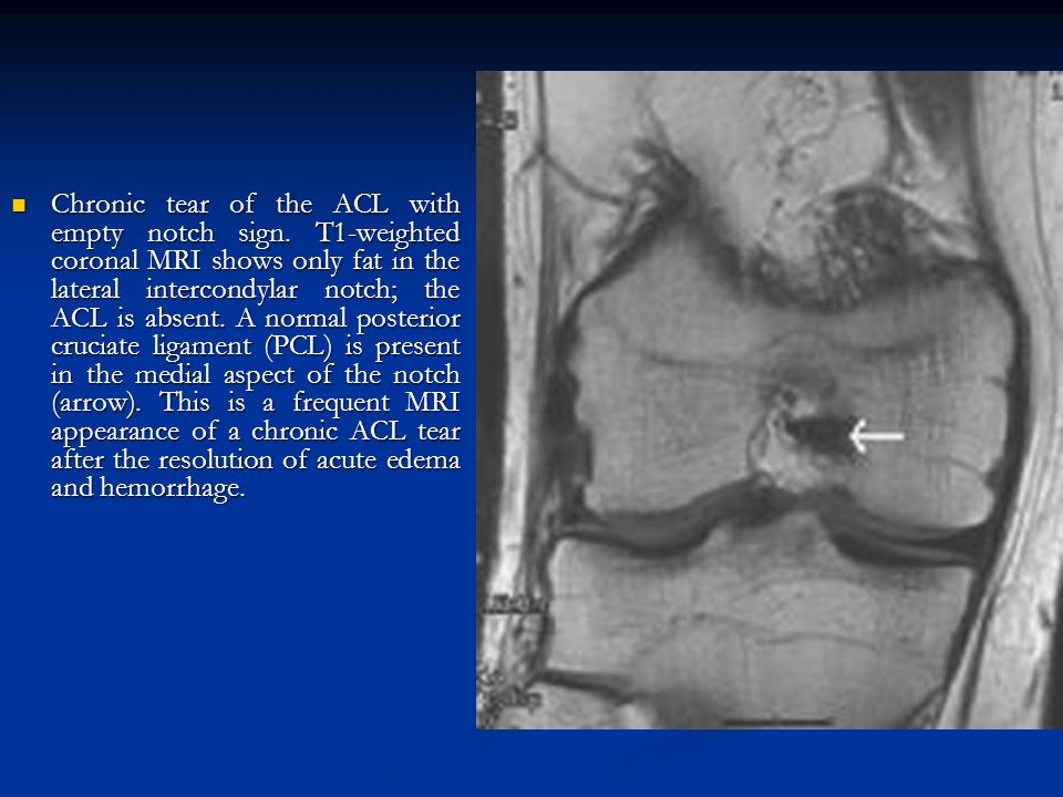 Chronic tear of the ACL with empty notch sign
