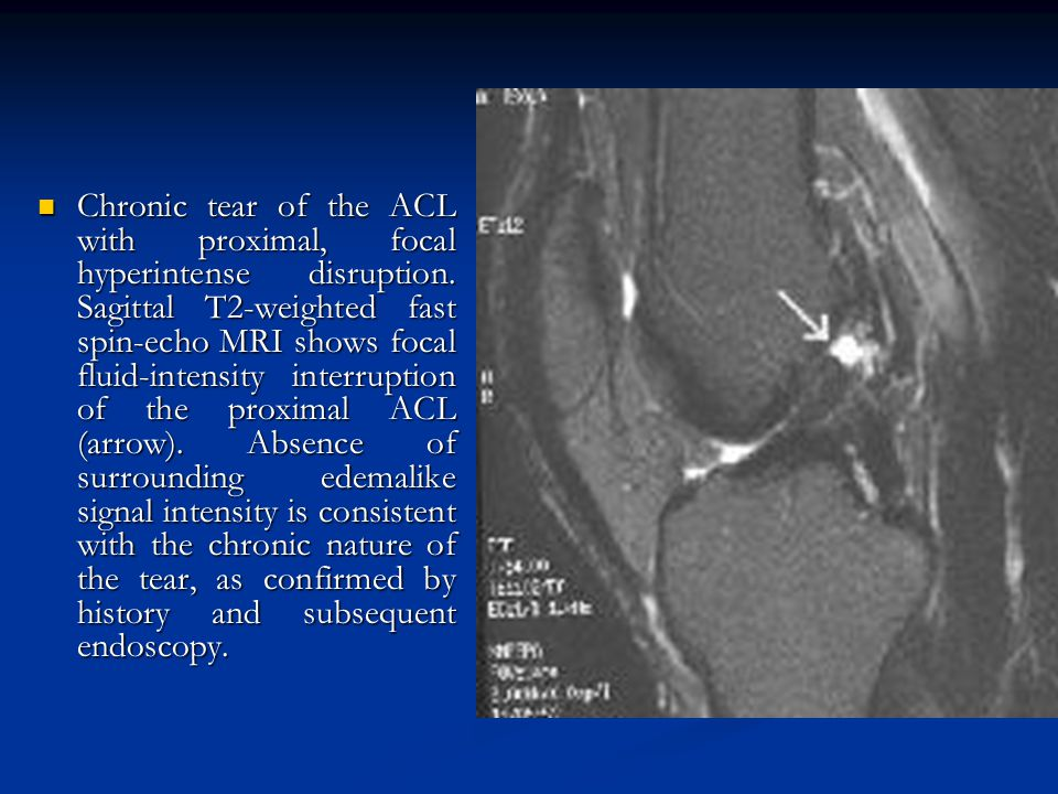 Chronic tear of the ACL with proximal, focal hyperintense disruption