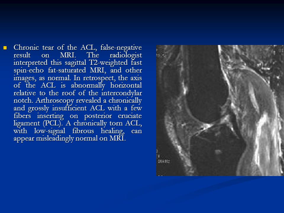 Chronic tear of the ACL, false-negative result on MRI
