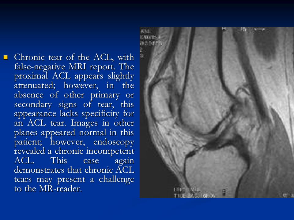 Chronic tear of the ACL, with false-negative MRI report