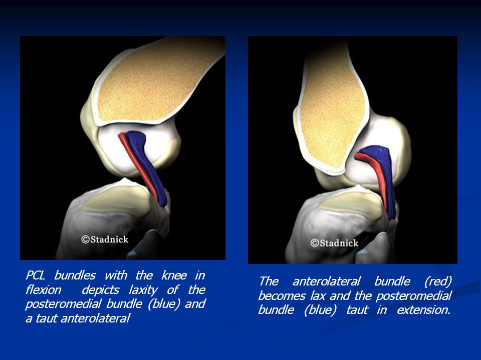 PCL bundles with the knee in flexion depicts laxity of the posteromedial bundle (blue) and a taut anterolateral