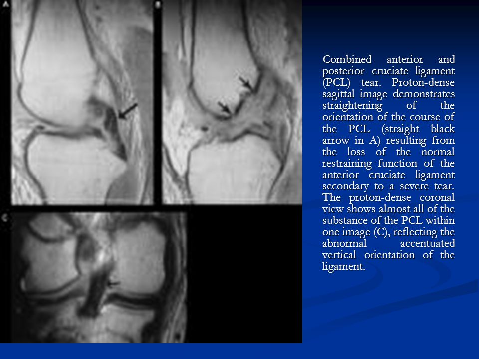 Combined anterior and posterior cruciate ligament (PCL) tear