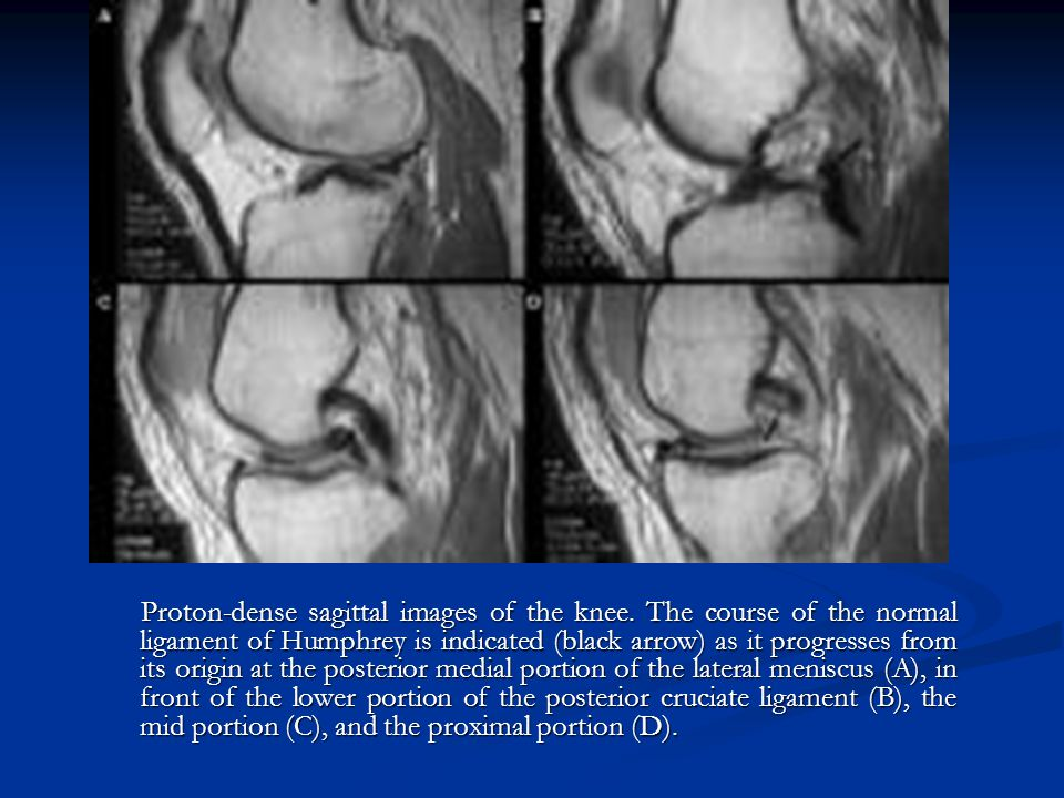 Proton-dense sagittal images of the knee