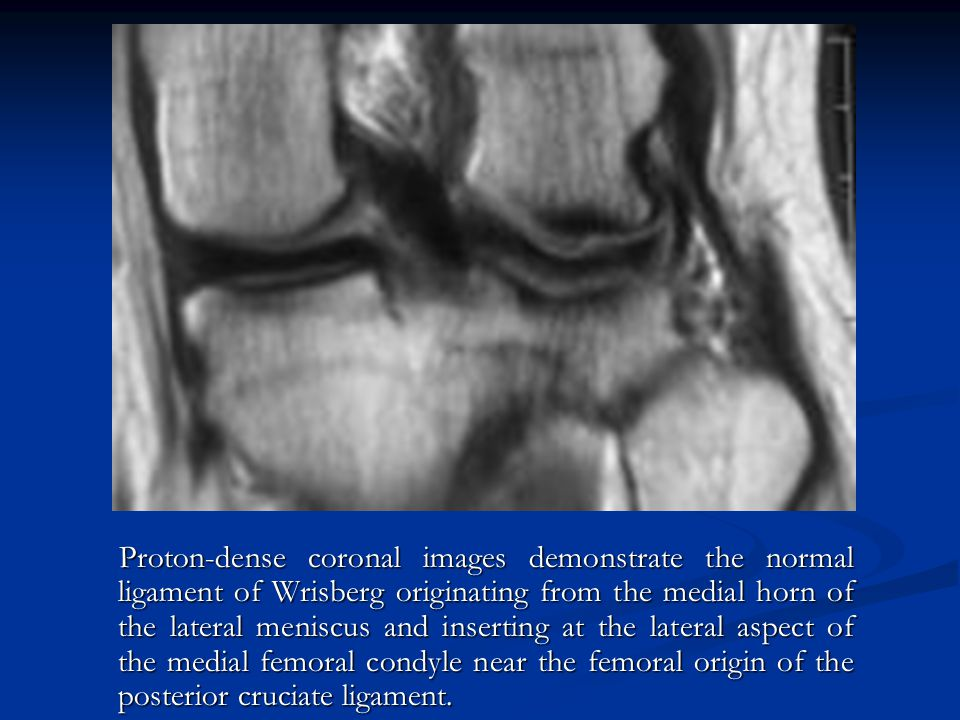 Proton-dense coronal images demonstrate the normal ligament of Wrisberg originating from the medial horn of the lateral meniscus and inserting at the lateral aspect of the medial femoral condyle near the femoral origin of the posterior cruciate ligament.