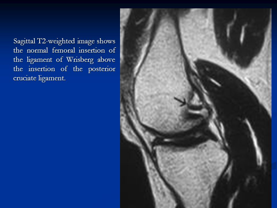 Sagittal T2-weighted image shows the normal femoral insertion of the ligament of Wrisberg above the insertion of the posterior cruciate ligament.