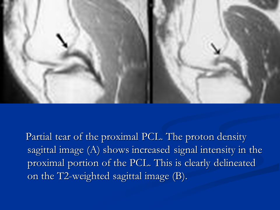 Partial tear of the proximal PCL