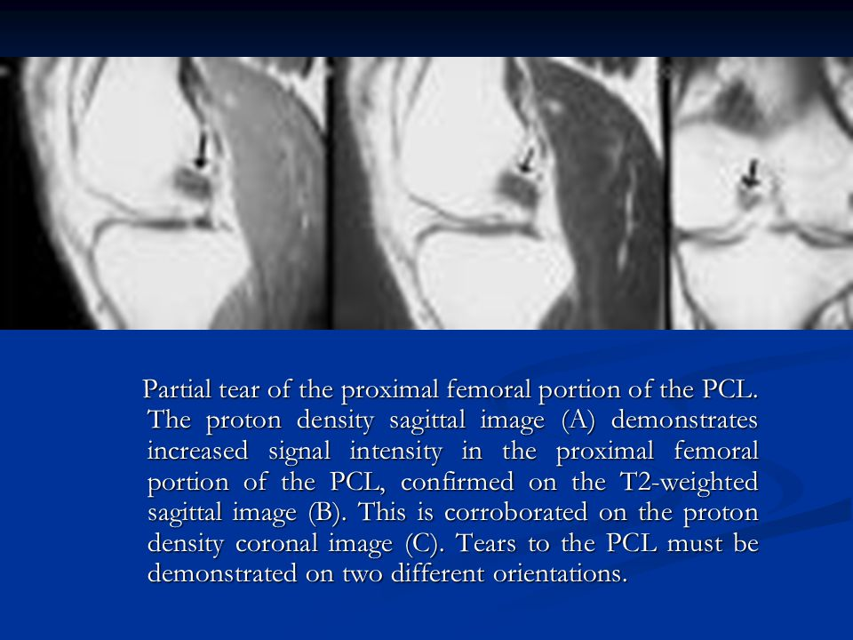 Partial tear of the proximal femoral portion of the PCL