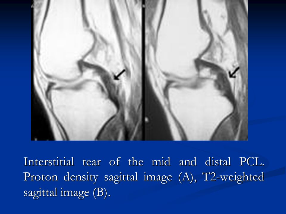 Interstitial tear of the mid and distal PCL