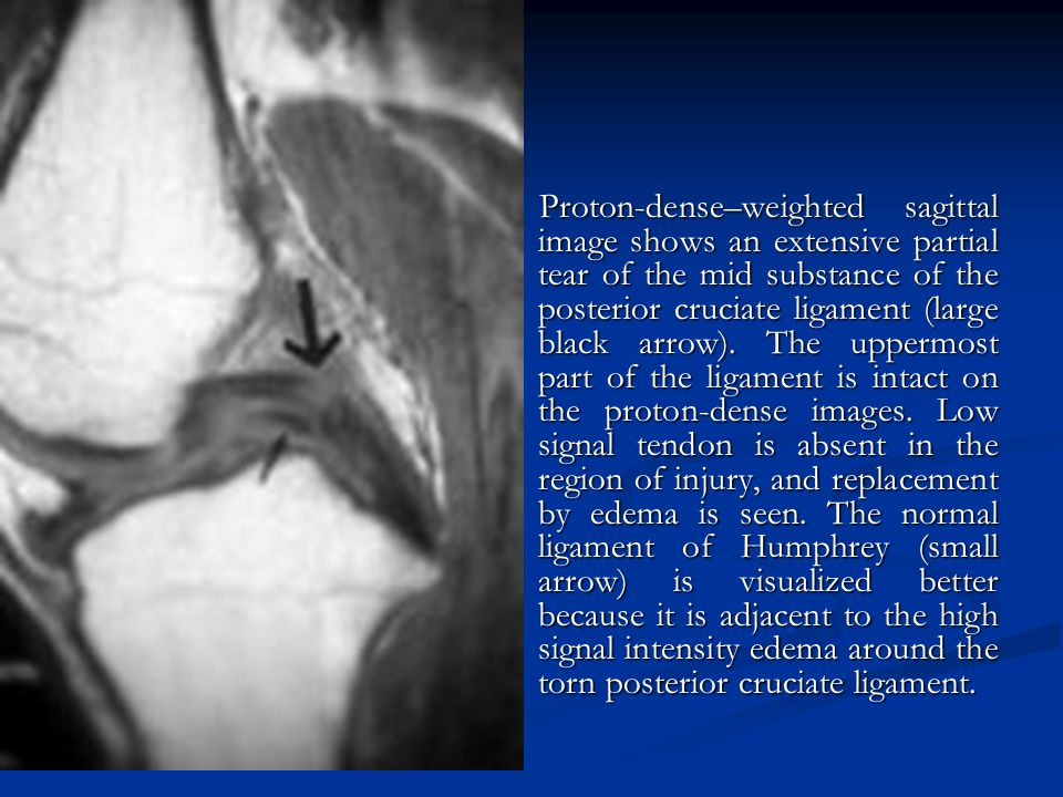 Proton-dense–weighted sagittal image shows an extensive partial tear of the mid substance of the posterior cruciate ligament (large black arrow).