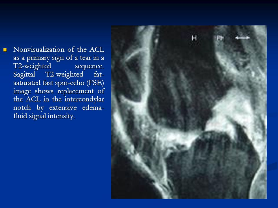 Nonvisualization of the ACL as a primary sign of a tear in a T2-weighted sequence.