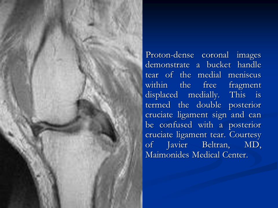 Proton-dense coronal images demonstrate a bucket handle tear of the medial meniscus within the free fragment displaced medially.