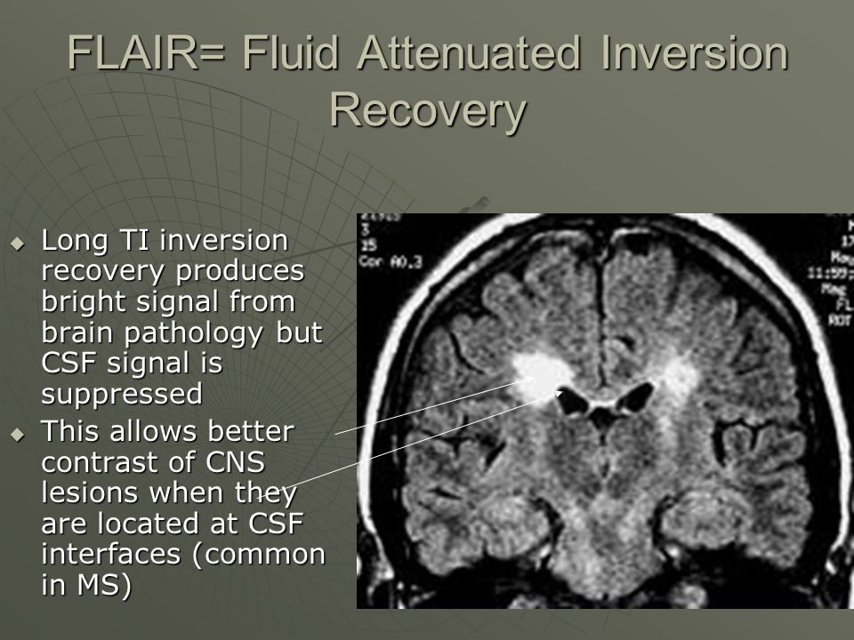 FLAIR= Fluid Attenuated Inversion Recovery