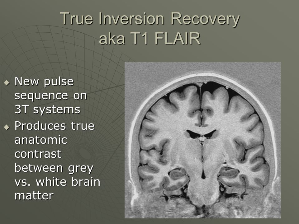 True Inversion Recovery aka T1 FLAIR