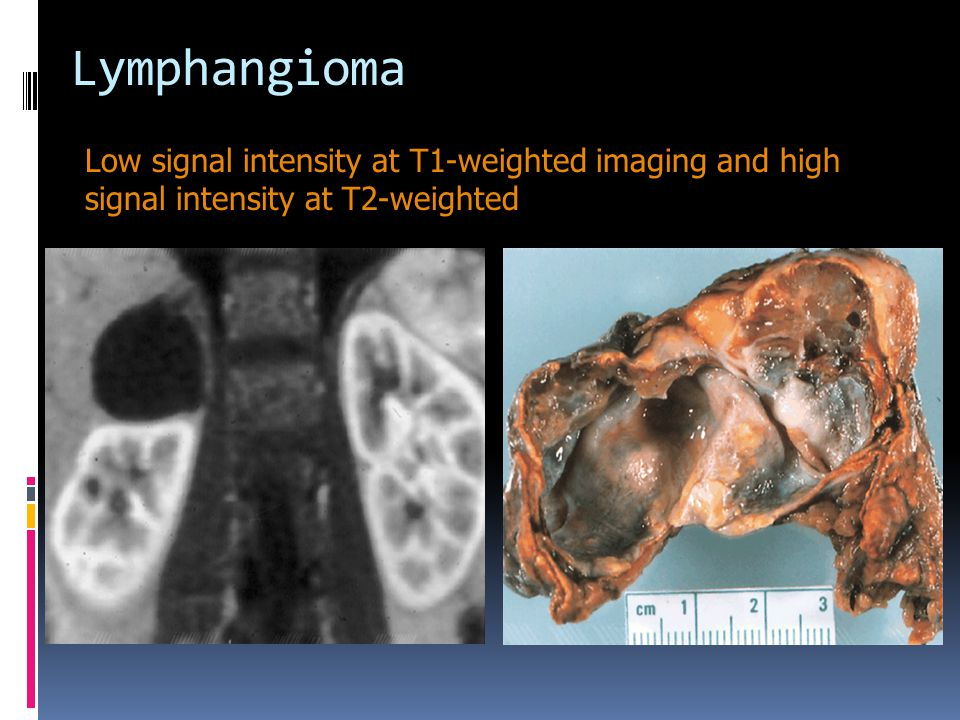 Lymphangioma Low signal intensity at T1-weighted imaging and high signal intensity at T2-weighted