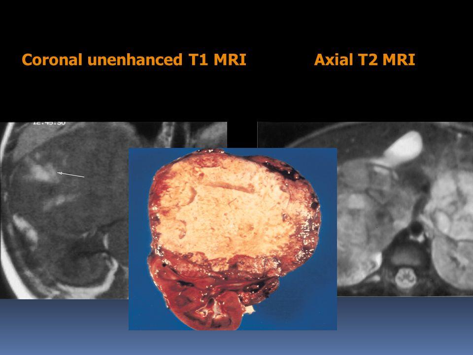 Coronal unenhanced T1 MRI