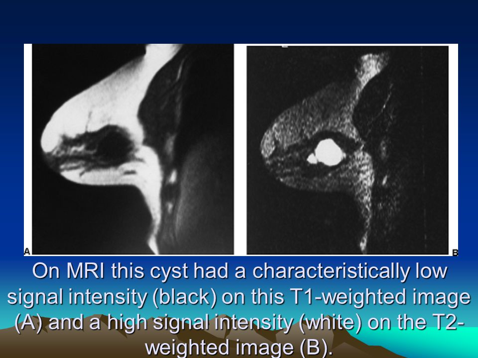 On MRI this cyst had a characteristically low signal intensity (black) on this T1-weighted image (A) and a high signal intensity (white) on the T2-weighted image (B).
