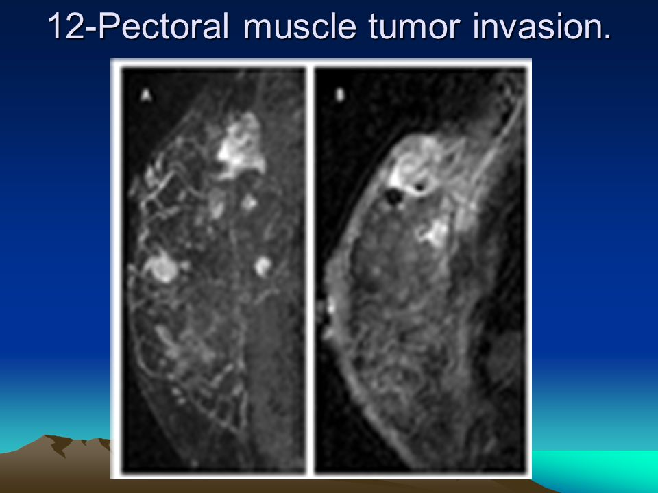 12-Pectoral muscle tumor invasion. .