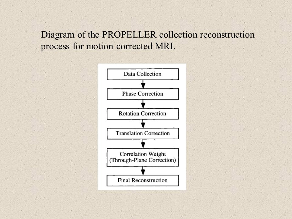 Diagram of the PROPELLER collection reconstruction process for motion corrected MRI.