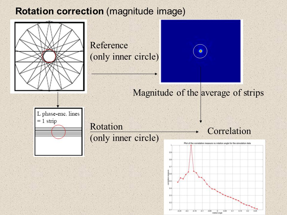 Rotation correction (magnitude image)