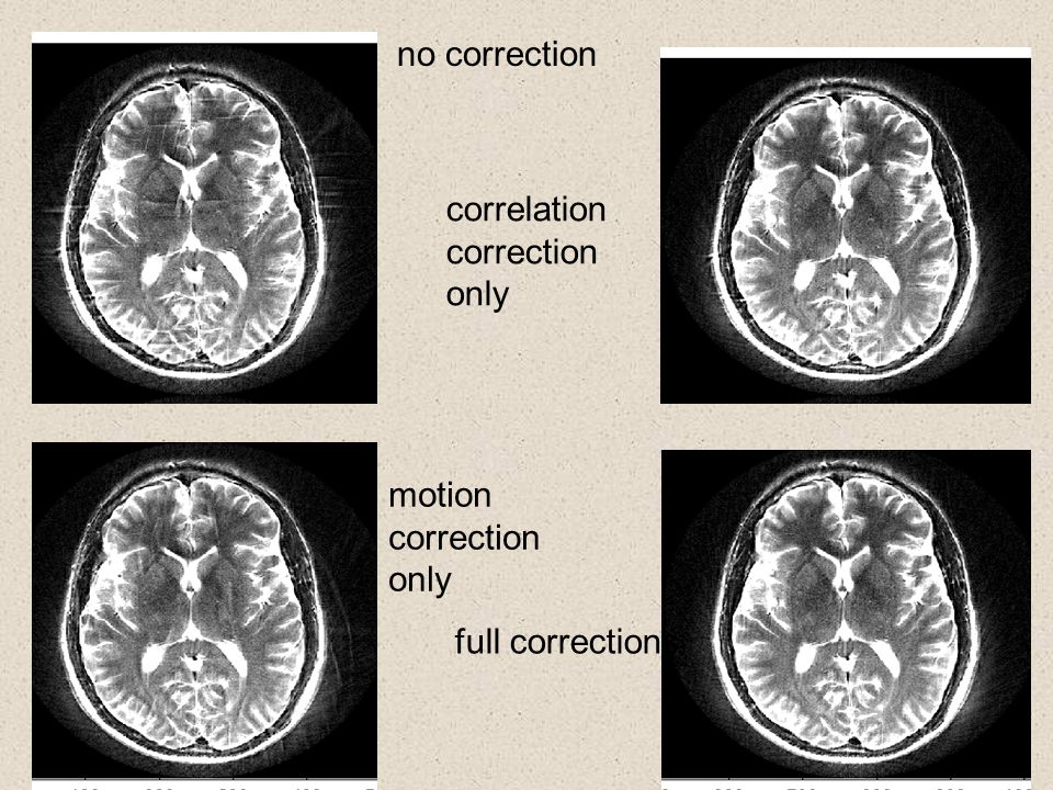 no correction correlation correction only motion correction only full corrections