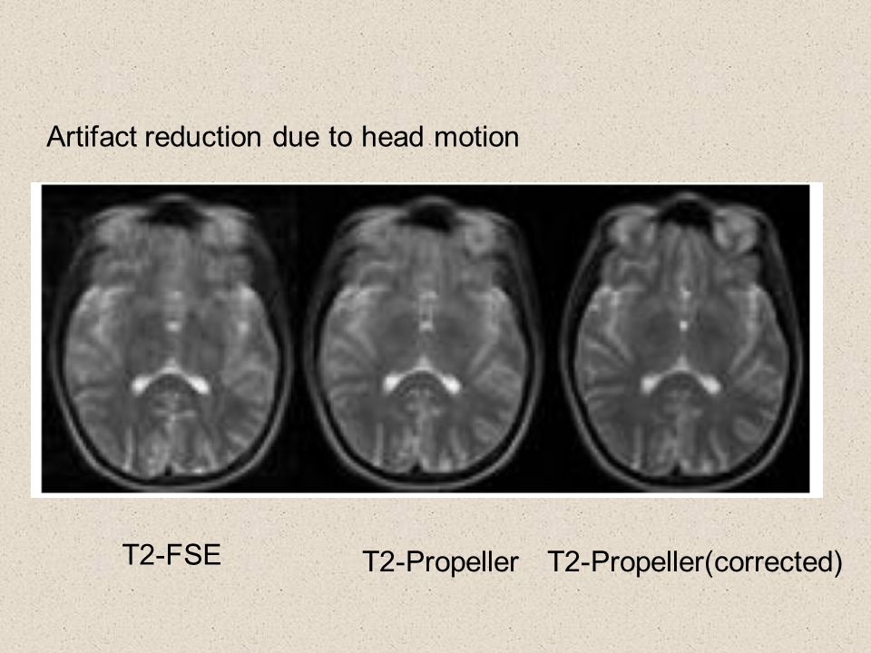 Artifact reduction due to head motion