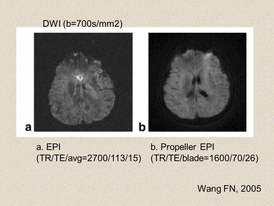 DWI (b=700s/mm2) a. EPI. (TR/TE/avg=2700/113/15) b.