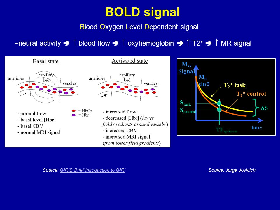 BOLD signal Blood Oxygen Level Dependent signal