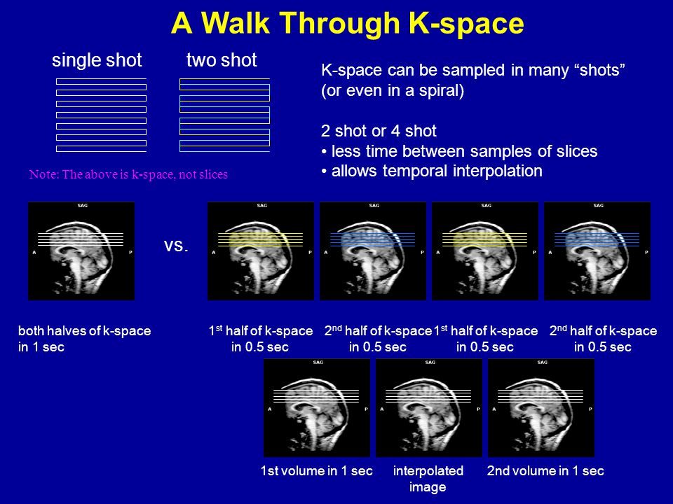 A Walk Through K-space single shot two shot vs.