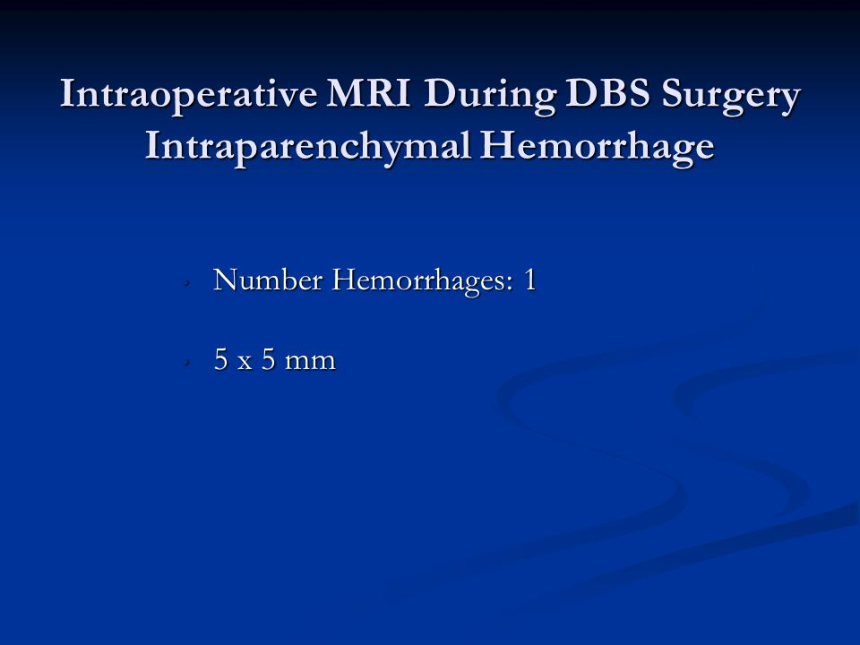 Intraoperative MRI During DBS Surgery Intraparenchymal Hemorrhage