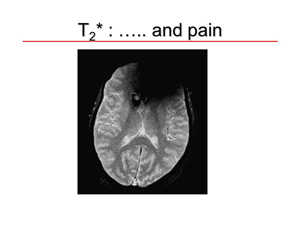 T2* : ….. and pain