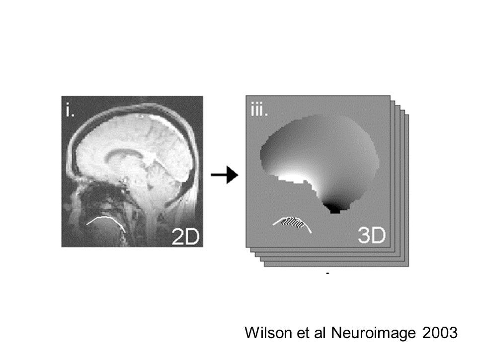 Wilson et al Neuroimage 2003