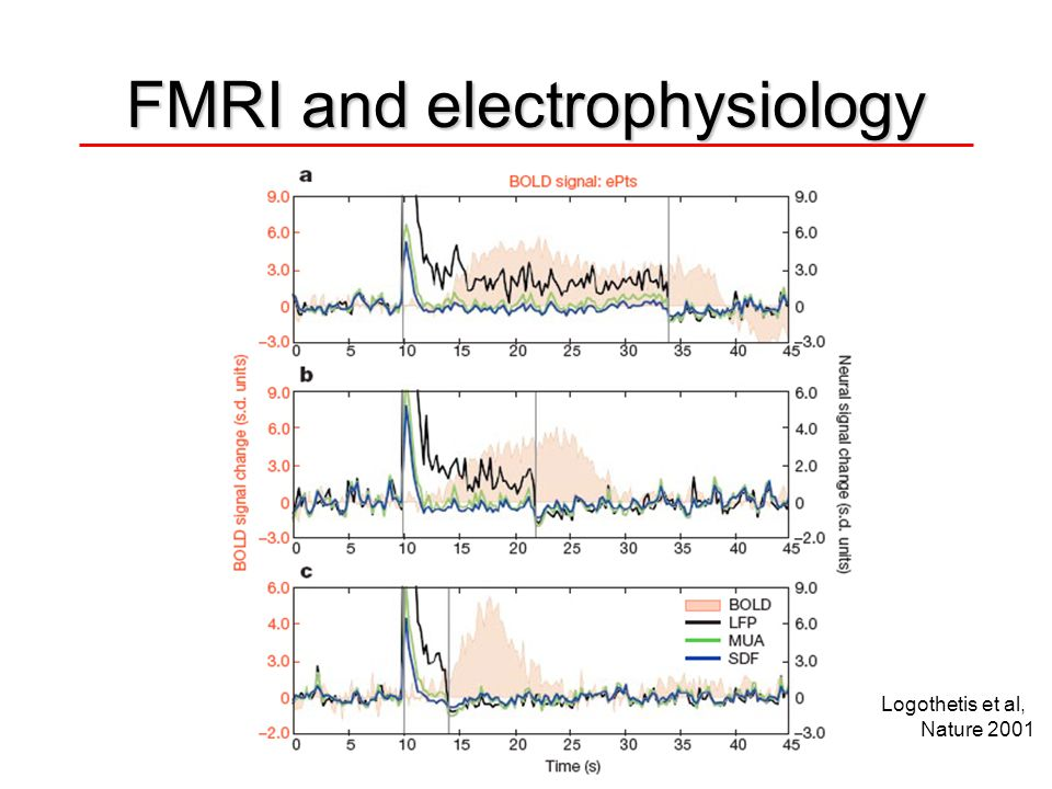 FMRI and electrophysiology