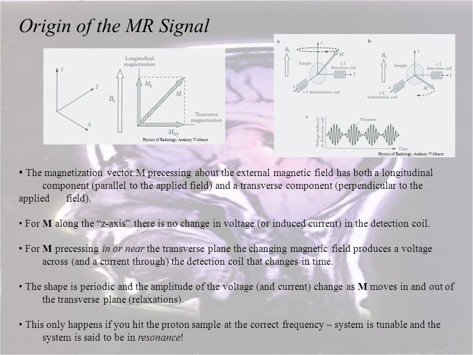 Origin of the MR Signal Physics of Radiology, Anthony Wolbarst. Physics of Radiology, Anthony Wolbarst.