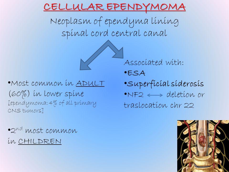 CELLULAR EPENDYMOMA Neoplasm of ependyma lining