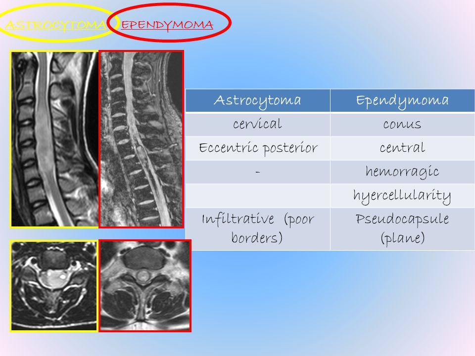 Astrocytoma Ependymoma
