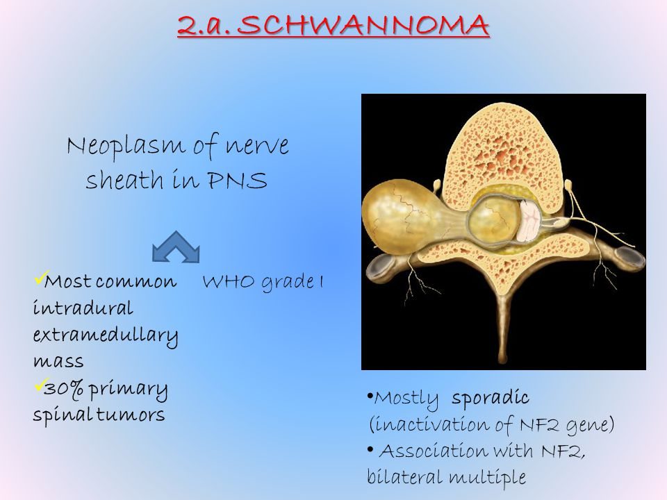 Neoplasm of nerve sheath in PNS