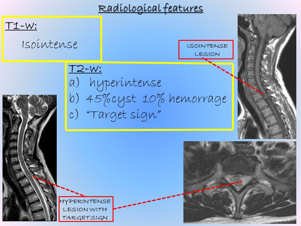 Radiological features HYPERINTENSE LESION WITH TARGET SIGN