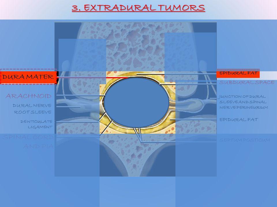 3. EXTRADURAL TUMORS DURA MATER ARACHNOID SPINAL CORD AND PIA