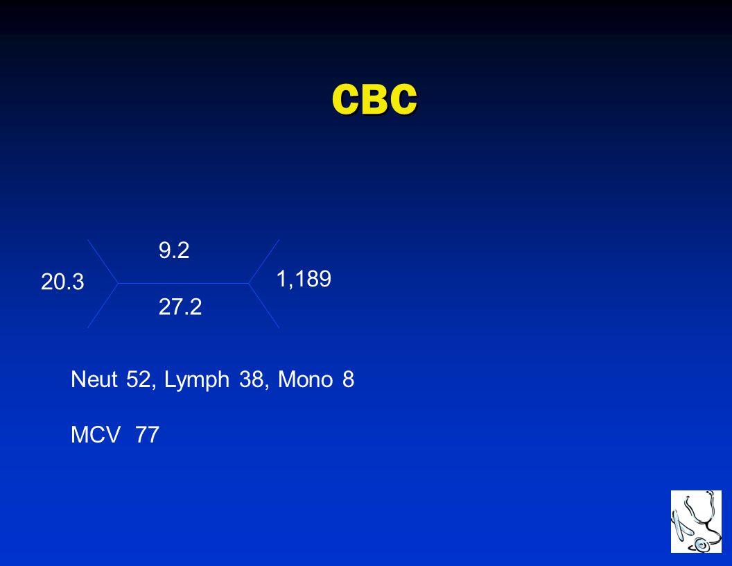CBC 9.2 20.3 1,189 27.2 Neut 52, Lymph 38, Mono 8 MCV 77