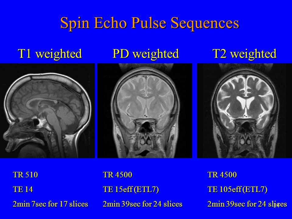 Spin Echo Pulse Sequences