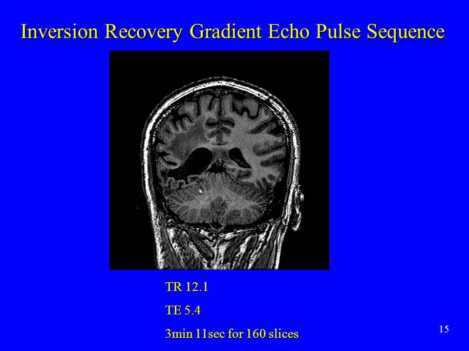 Inversion Recovery Gradient Echo Pulse Sequence