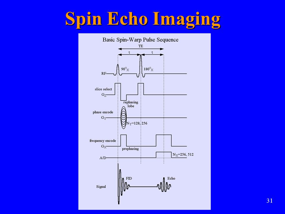 Spin Echo Imaging 31