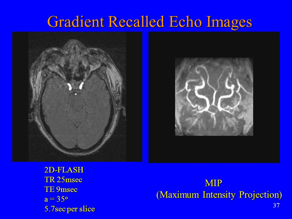 Gradient Recalled Echo Images