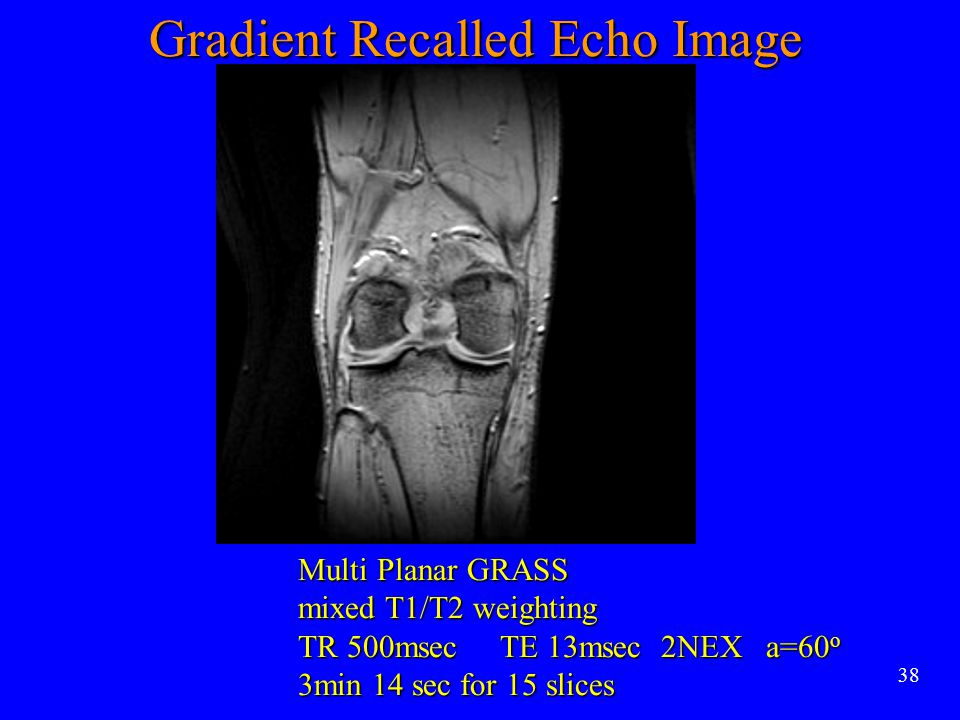 Gradient Recalled Echo Image